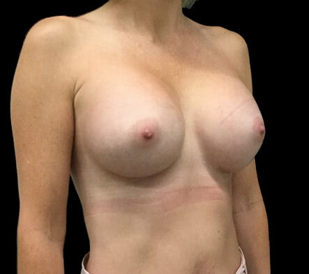 boob job Brisbane and Ipswich before and after