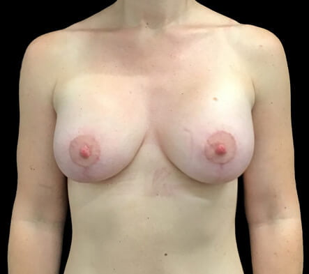 Plastic surgeon Brisbane mastopexy breast lift
