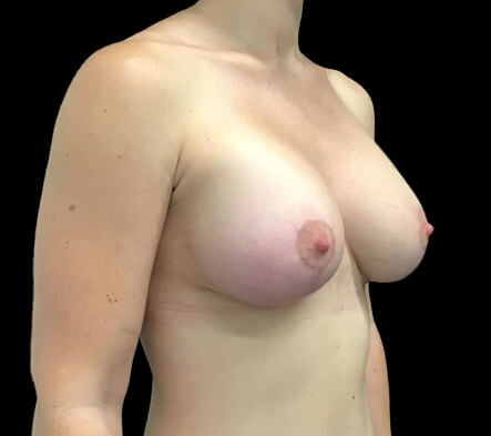 Brisbane plastic surgeon breast implants and lift