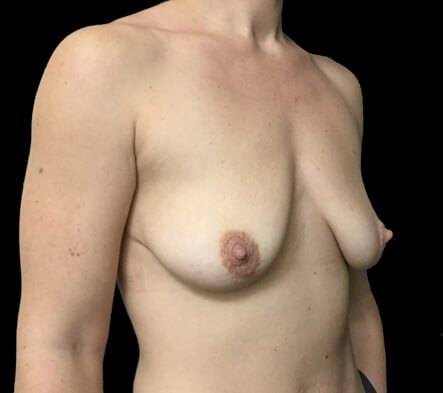 Brisbane breast surgeon and lift