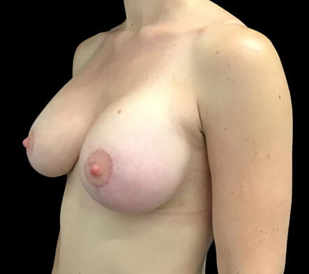 Dr Sharp breast lift surgeon Brisbane
