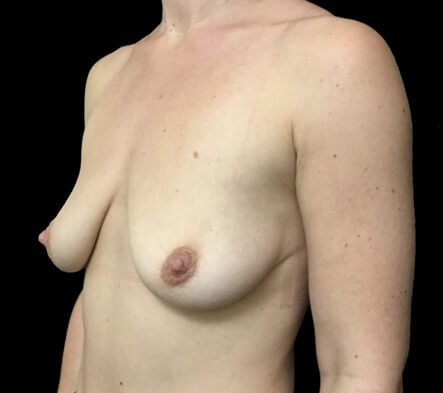Breast augmentation and lift surgery Brisbane plastic surgeon