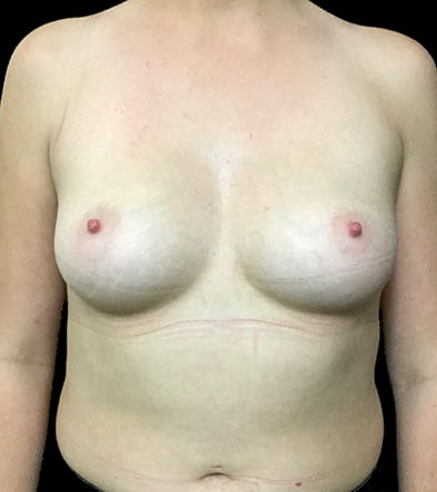 Brisbane breast augmentation surgeon with Dr Sharp