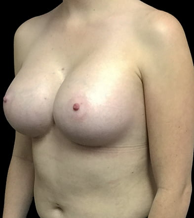 East Brisbane breast augmentation surgery