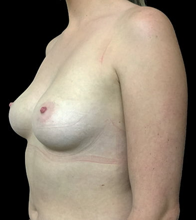 before boob job East Brisbane breast augmentation surgery