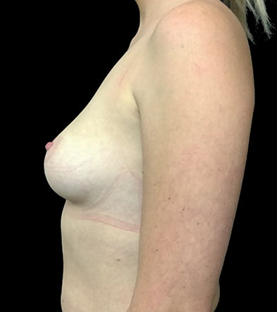 before breast augmentation cosmetic surgery