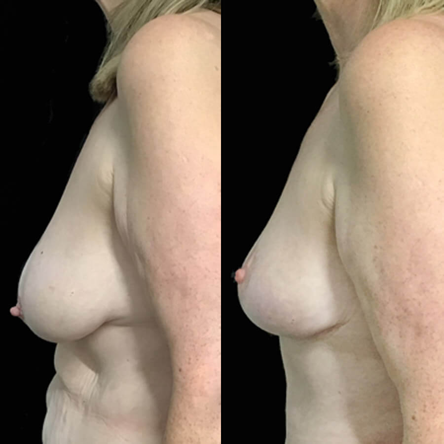 Brisbane breast lift surgeon Dr David Sharp