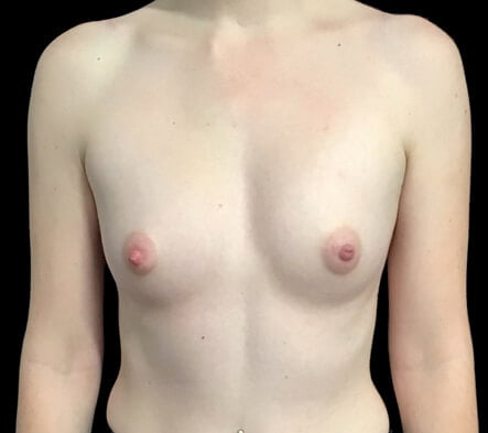 Small breast augmentation surgeon photos Brisbane and Ipswich