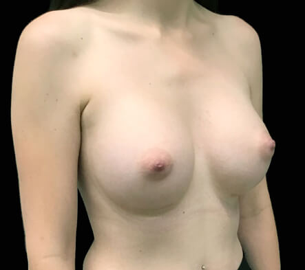 best breast augmentation natural look surgeon