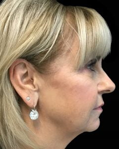 Brisbane facelift surgeon