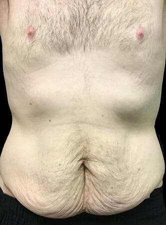 Brisbane abdominoplasty results before surgeon Dr Sharp