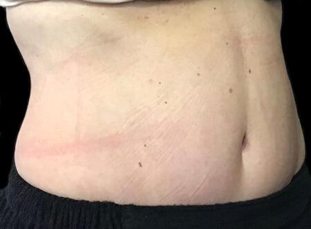 After abdominoplasty best surgeon