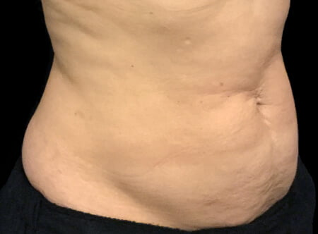 Recommendations tummy tuck abdominoplasty surgeons Brisbane and Ipswich