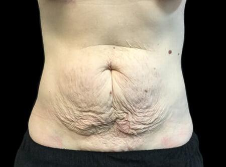 Tummy tuck surgeon South Brisbane