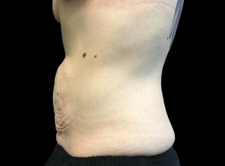 Brisbane abdominoplasty clinic plastic surgeon Dr Sharp