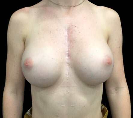 Breast augmentation surgery Ipswich cosmetic surgeon