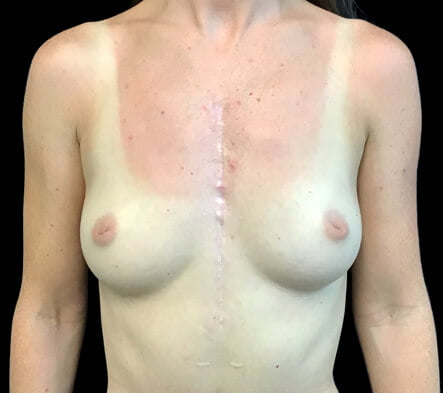Breast augmentation results surgeon