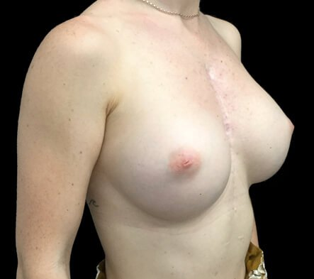 which breast augmentation Brisbane and Ipswich surgery