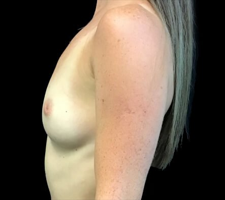 Ipswich before and after breastphotos Dr Sharp reviews