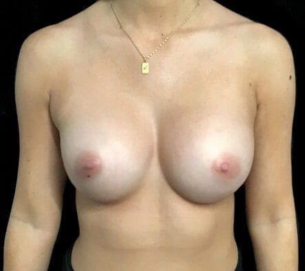 Dr David Sharp breast augmentation results photos