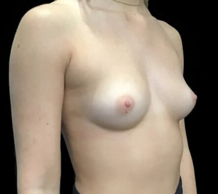 implants boob job Brisbane and Ipswich