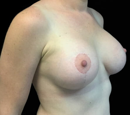 Brisbane plastic surgeon breast implants and lift Dr Sharp