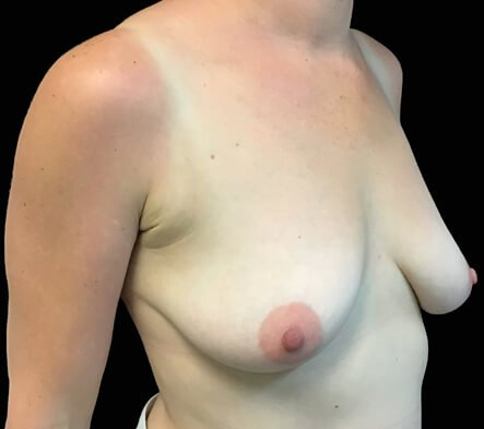 Brisbane breast surgeon and lift photo