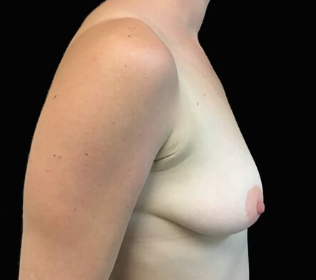 Breast augmentation and lift surgery Brisbane