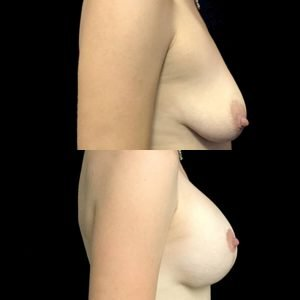 breast lift and enlargement