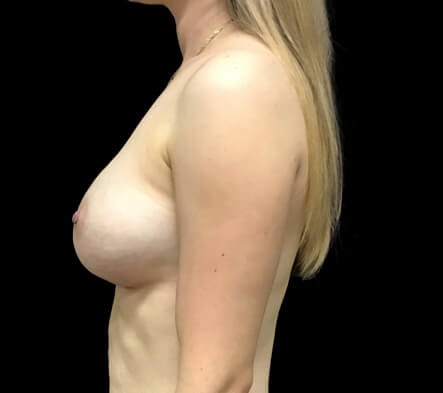breast augmentation Brisbane and Ipswich Dr Sharp results