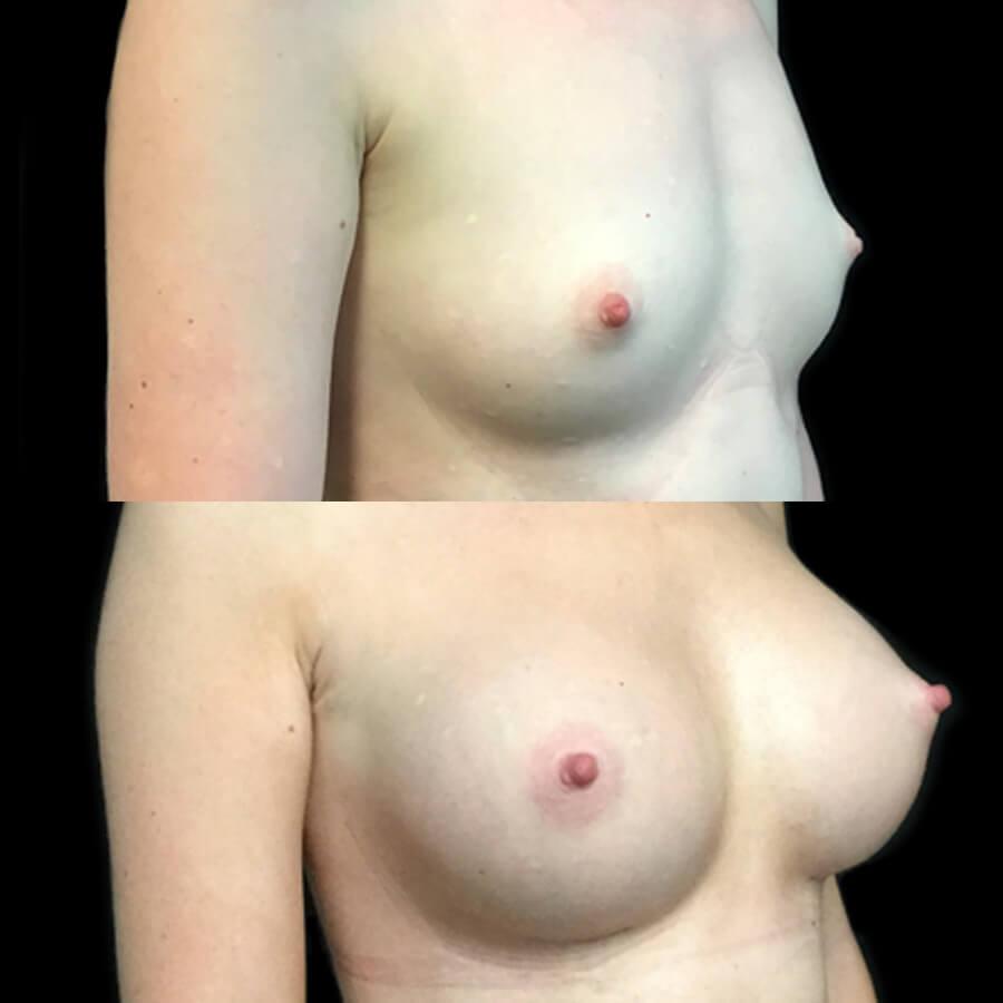 breast augmentation implants surgeon