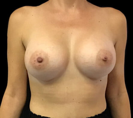 after breast augmentation implants Brisbane cosmetic surgery