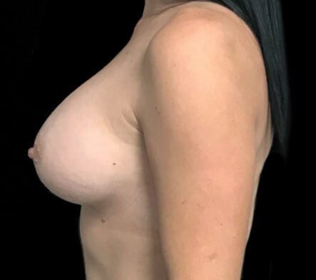 breast augmentation Dr David Sharp