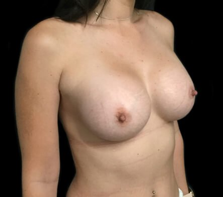 which breast augmentation Brisbane plastic surgeon