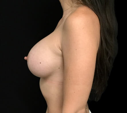 Breast augmentation surgery Brisbane