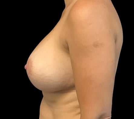 breast implant removal and lift Brisbane
