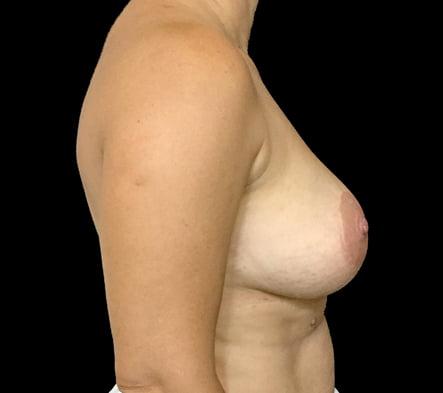 implant remove and mastopexy plastic surgeon