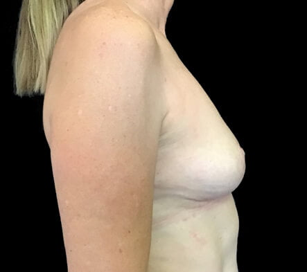 implant removal and reduction Brisbane