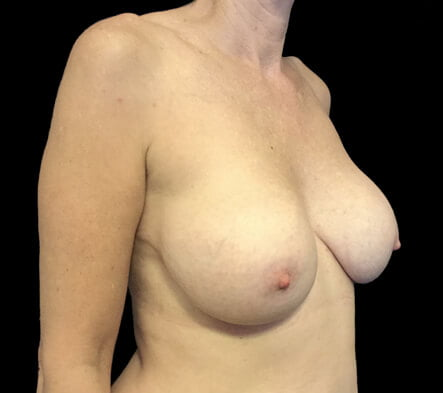 implant remove and breast reduction