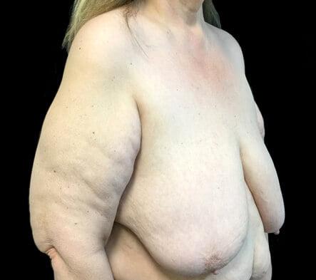 Brisbane breast reduction surgeon