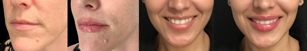 lip injection dermal filler experts Brisbane and Ipswich