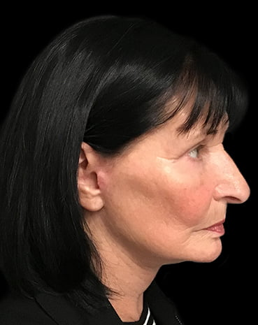 Facelift plastic surgeon specialist Dr Sharp