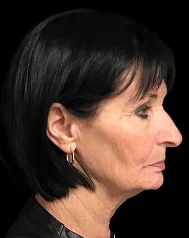 Brisbane facelift plastic surgeon specialist