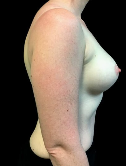 after breast augmentation and mini tummy tuck in Ipswich