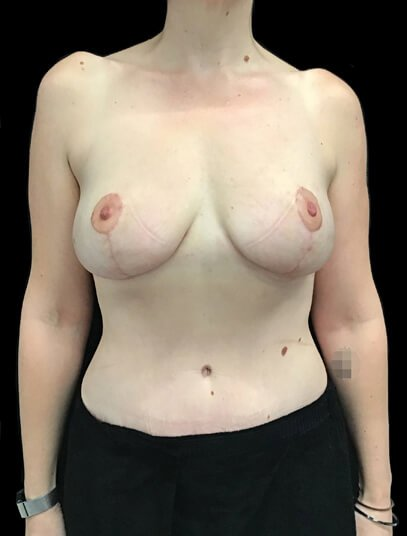 after tummy tuck and breast augmentation