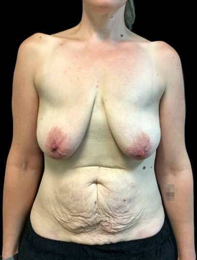 before abdominoplasty and breast augmentation surgery