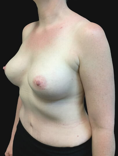after tummy tuck and breast implants