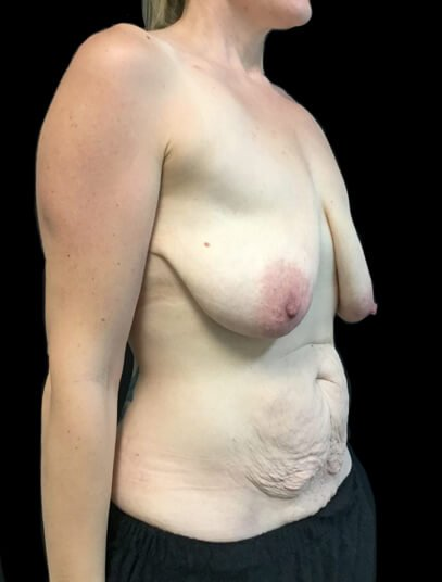 before breast augmentation and tummy tuck plastic surgery