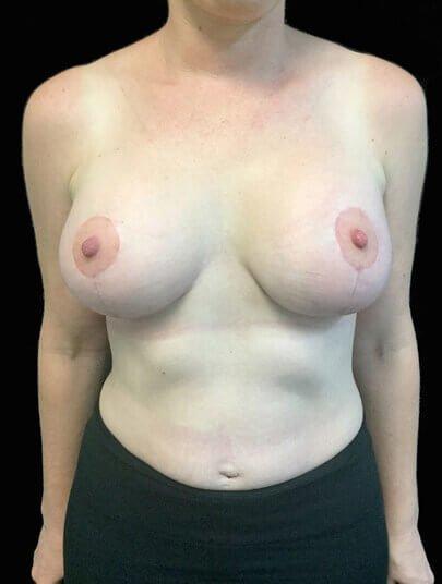 Mummy makeover plastic surgeon specialist Brisbane