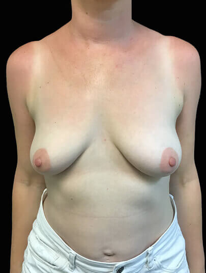 Plastic surgeon combined abdominoplasty and breast mastopexy with implants